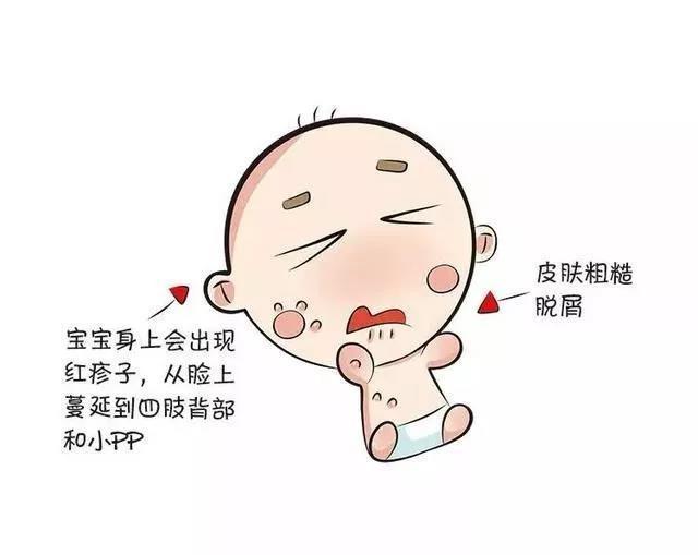 宝宝得了湿疹老不好?这几个错误的小偏方可一定要注意了